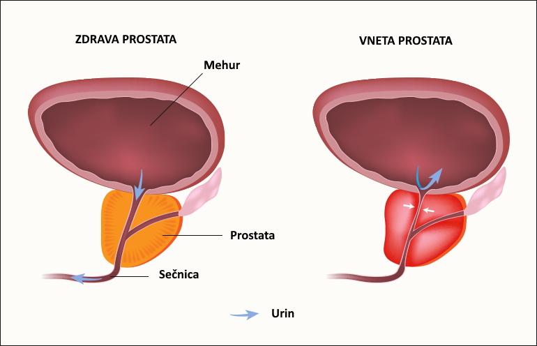 Krónikus prosztata infúziók Az orvostudomány prosztata kezelése